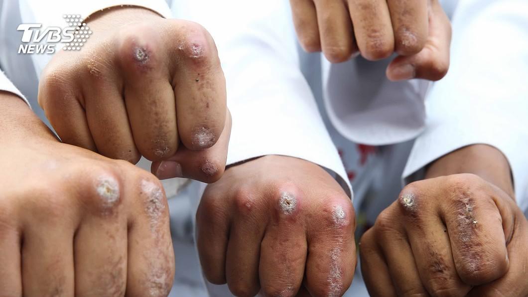 圖/中央社 因為榮譽!莒拳隊耐過地獄訓練 拳頭指節厚繭如鐵