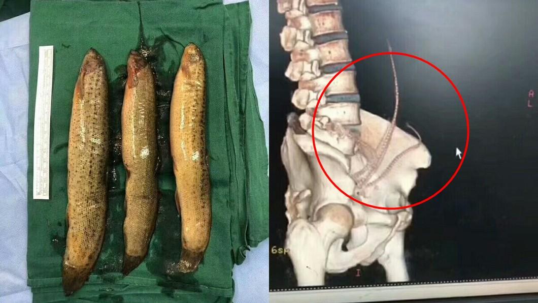 圖/翻攝自肝膽外科羅大夫微博 求刺激?男把3條大泥鰍塞肛門 竟順著直腸鑽進肚子