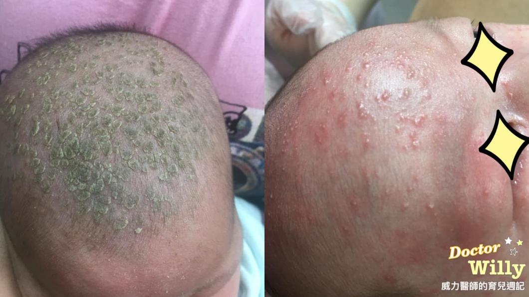 新生兒臉頰或頭部可能長出「綠色鱗片」、「青春痘」。圖/翻攝自「威力醫師的育兒週記-王韋力」 嬰兒長「綠色鱗片」和「青春痘」? 醫:亂摳恐感染