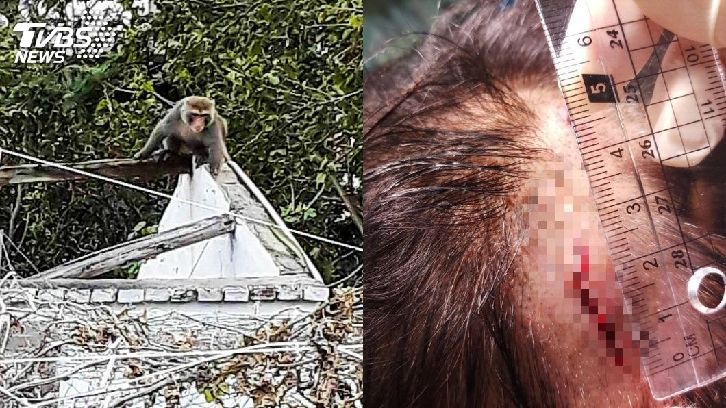 張男午睡時,無端遭獼猴啃咬頭部。圖/TVBS  縫了10幾針!屏東男在客廳午睡 獼猴直闖「啃咬頭」