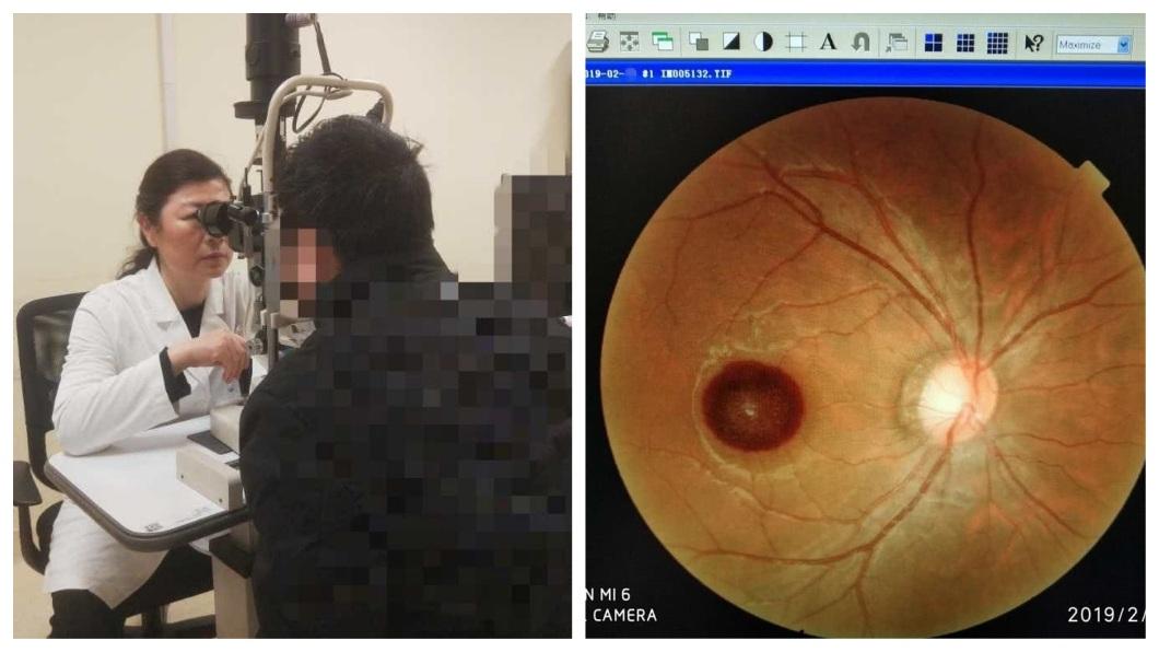 該名人父被兒子亂射的雷射筆射入右眼,導致其視力只剩0.03,而且難以恢復。(圖/翻攝自騰訊網)