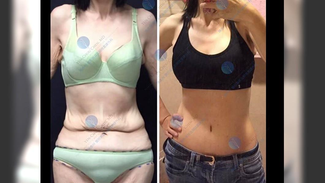 原本鬆弛的贅皮經手術變緊實。圖/翻攝自陳彥州 整形外科臉書 她鏟肉70kg驚見沙皮肚…傲人雙峰慘淪「布袋奶」