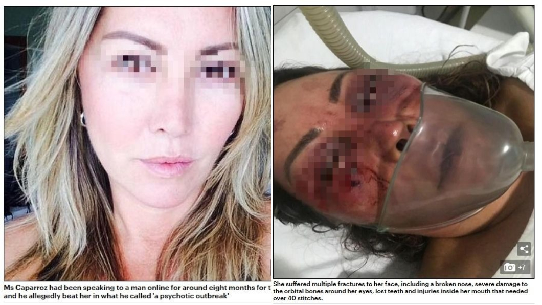 卡培洛茲慘遭爆打,原本漂亮的臉蛋變成豬頭。圖/翻攝自《每日郵報》 網路交友約回家!她慘遭爆打4小時 臉縫逾40針