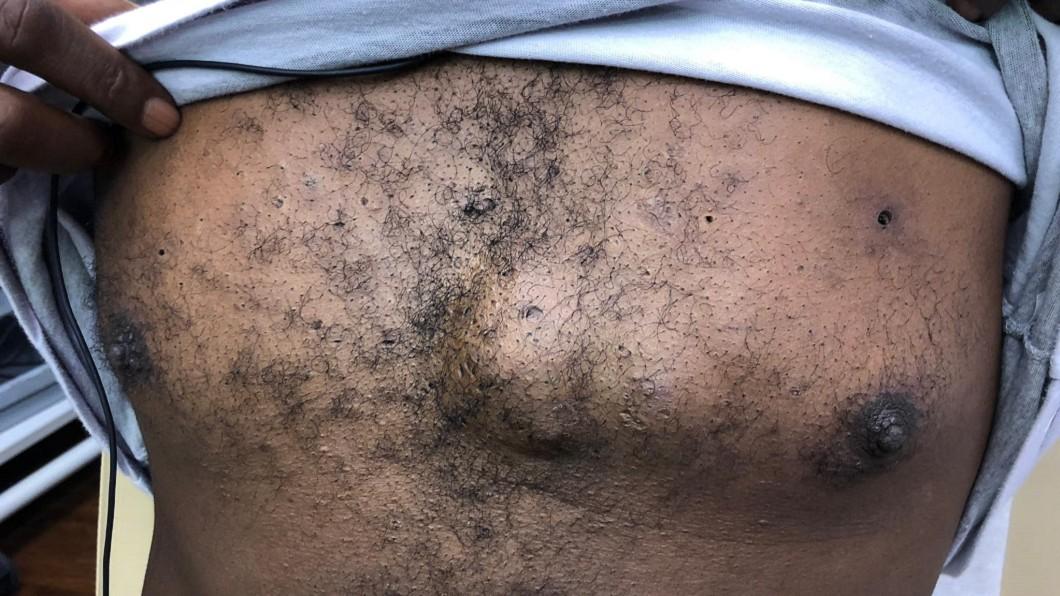 美國男子肯頭上和胸前都有巨大粉瘤。圖/翻攝自 Sandra Lee 臉書