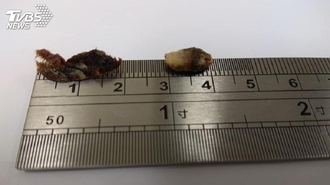 這2坨超大耳時分別有2公分和1公分長。(圖/門諾醫院提供)