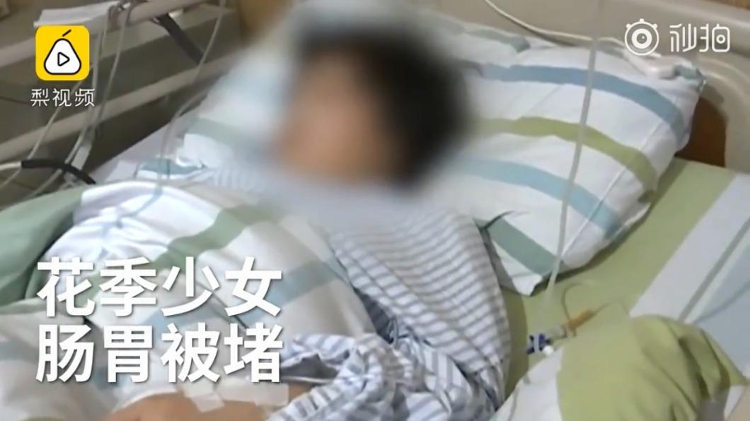 圖/翻攝自微博 12歲女童肚痛開刀 驚見250公克黑髮!