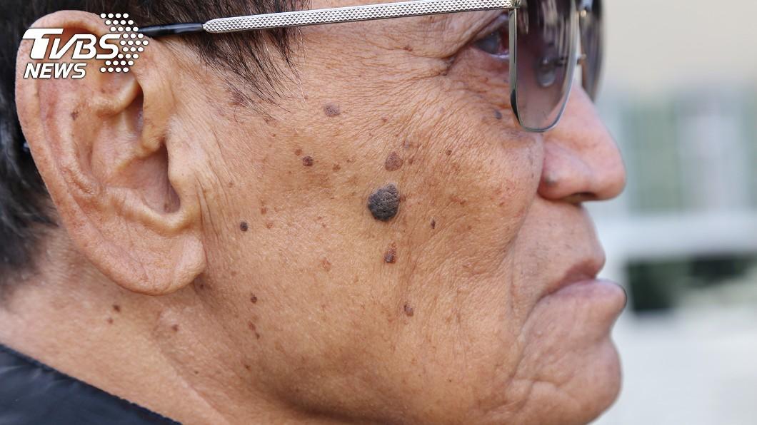 凸痣=皮膚癌? 醫曝「這3種」斑點:很危險!