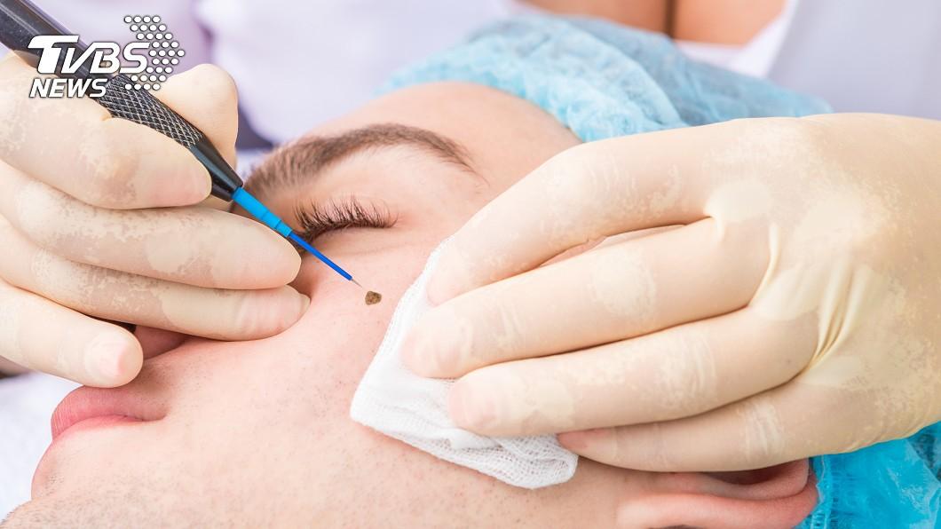 皮膚若出現不明斑點或腫瘤,醫師建議應先到醫院檢查,不要隨意雷射。示意圖/TVBS