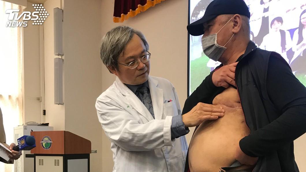男性也可能罹患乳癌,不要輕忽!圖/中央社 他「胸部腫大」以為練出胸肌!噴血就醫已是乳癌第3期