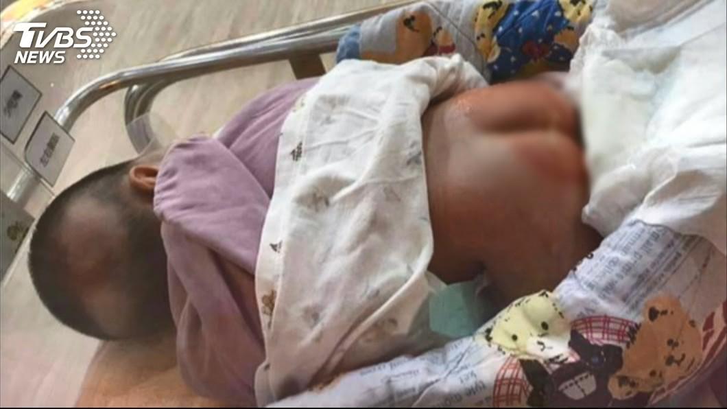 圖/TVBS 桃園護理之家新生女嬰疑灼傷送醫 母提告業者