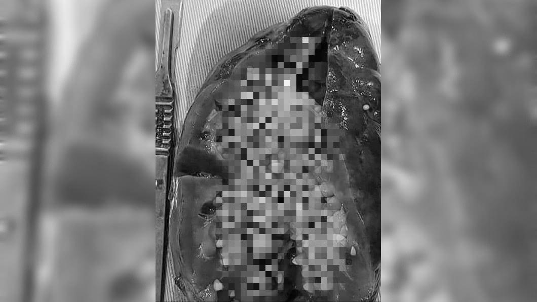 圖/翻攝自Medical-Online臉書 慎入!腎臟狂冒密麻結石 醫嚇傻:這顆已不行了