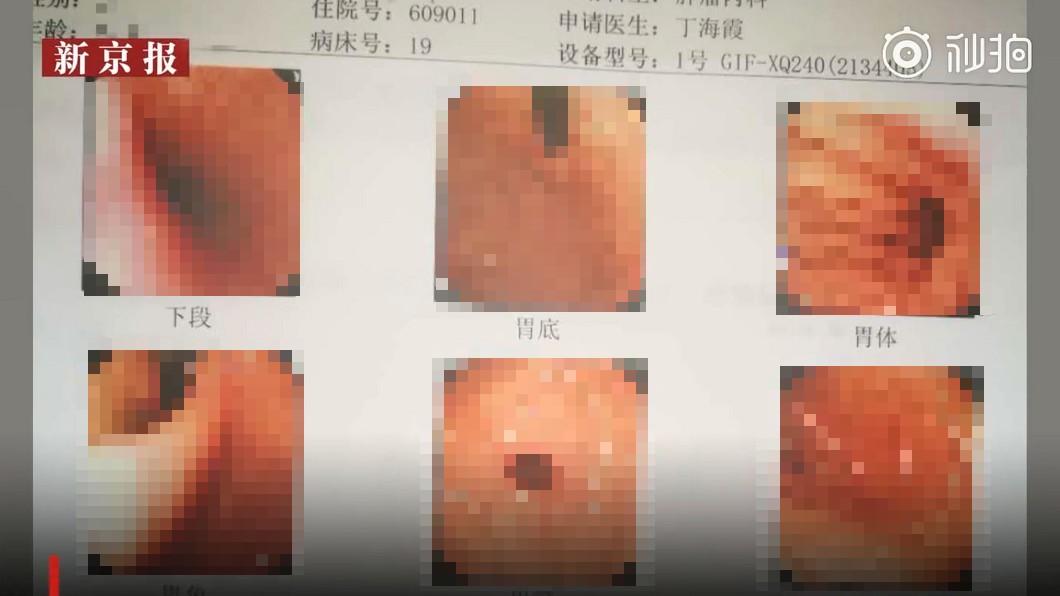 圖/翻攝自 秒拍 聽信偏方「吞活蛆」治肺癌 醫照胃鏡嚇壞:滿肚肥蟲