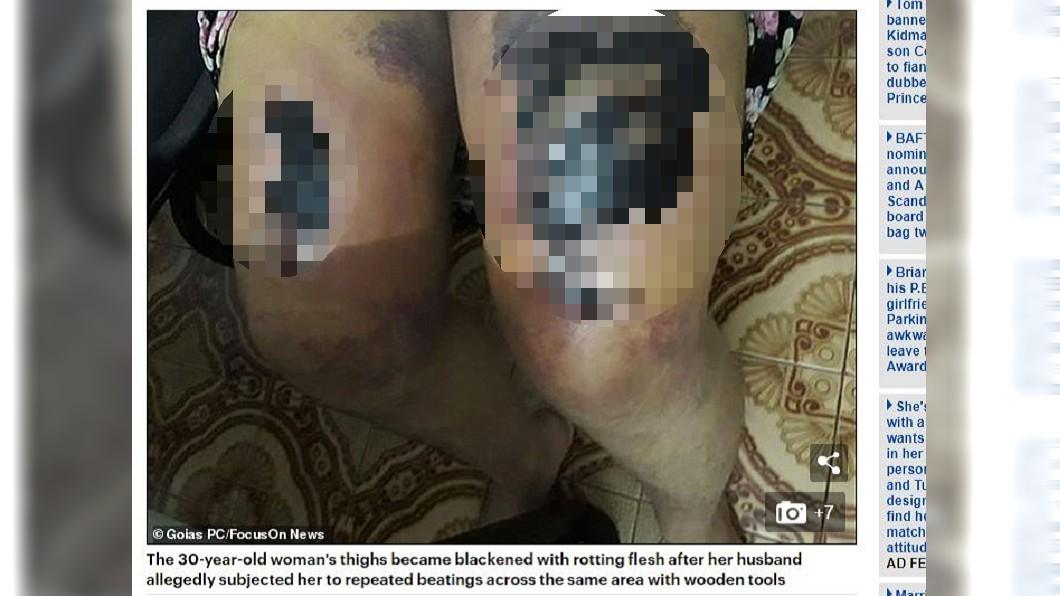 圖/翻攝自每日郵報 遭夫「人祭」安撫惡靈…女腿腐爛壞死 1歲女兒也遭殃
