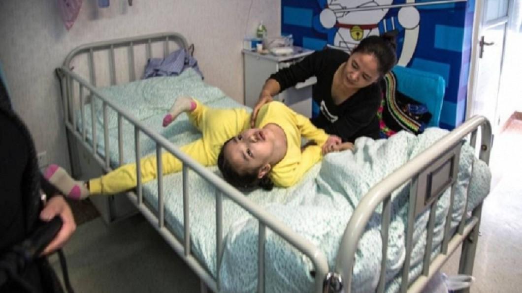 大陸雲南省一名女童先前也被診斷為「錐體外症候群」,身體捲曲如同電影大法師,與陳女的症狀類似。圖/翻攝自《微博》 吃完止吐藥竟臉歪「捲曲成大法師」 家人憂:被上身?