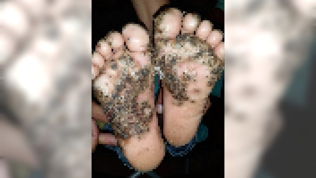 圖/翻攝自 新英格蘭醫學期刊 官網 慎入!女童赤腳逛豬圈 腳底長滿「黑頭膿包」