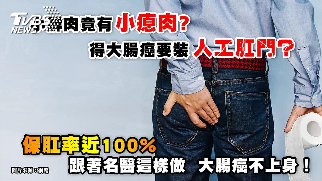 圖/TVBS提供 人工肛門 Out!跟著名醫這樣做,大腸癌不上身
