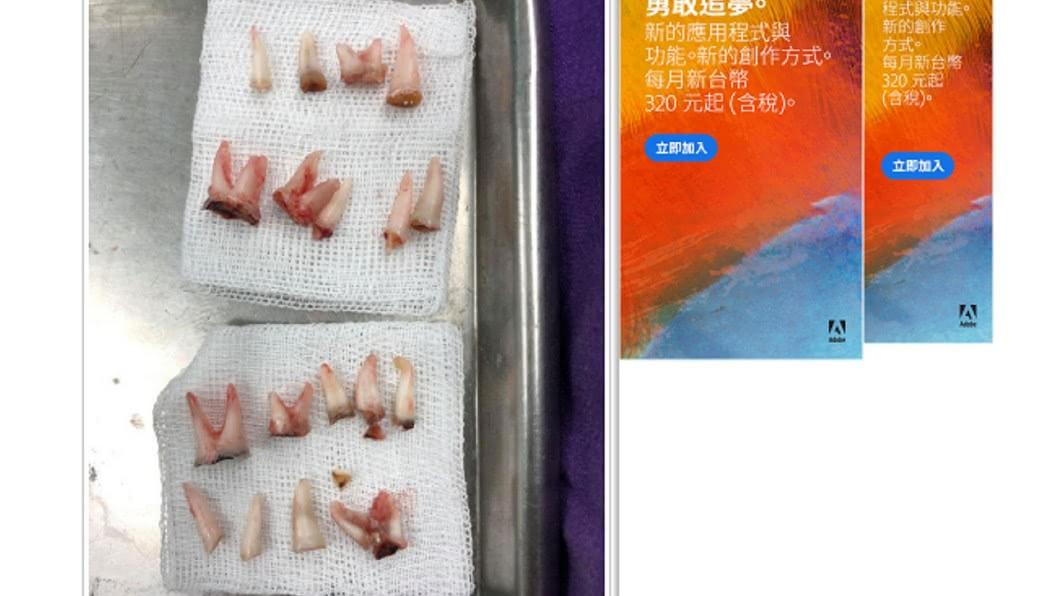 乳牙被蛀光無法填補,只能拔掉。圖/翻攝自中國網