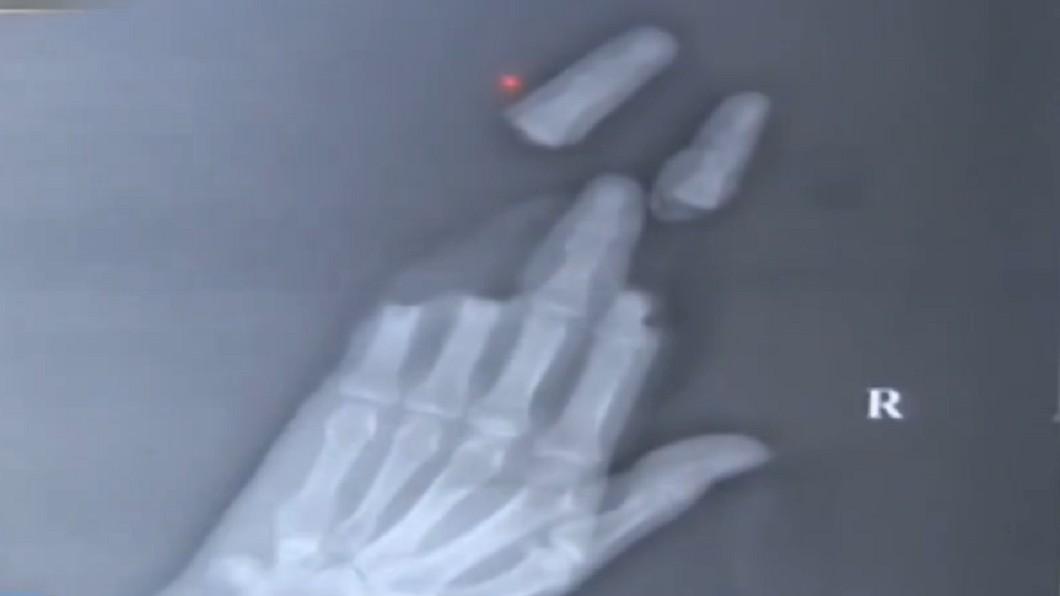 男子4隻手指被風箏線割斷。圖/翻攝自《江蘇公共新聞》 風箏變凶器!突吹怪風…大叔來不及收線慘斷4指