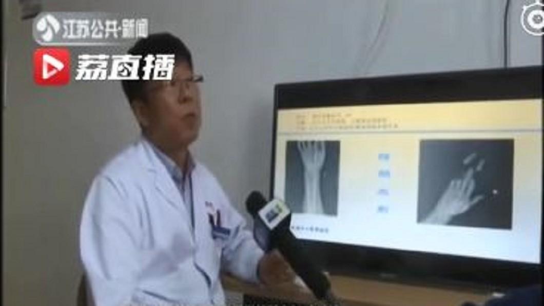 圖/翻攝自江苏新闻 微博 小心「隱形利刃」風箏線 陸男被割斷4手指