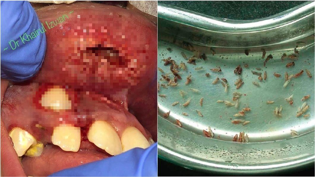 圖/翻攝自Mohd Khairul Izwan臉書 傷口遭蒼蠅築巢產卵 醫從少女嘴唇拉出16幼蟲
