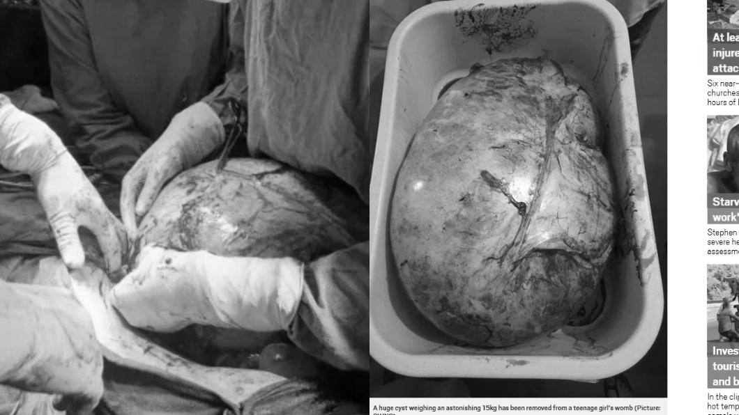 圖/翻攝自都市日報 月經沒來急求診!醫一看嚇傻…少女子宮藏15kg巨瘤