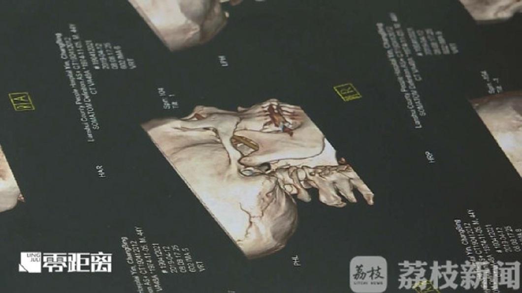 檢查發現,男子的眼窩竟然插了一根長約8.5公分的筷子。(圖/翻攝自荔枝網)