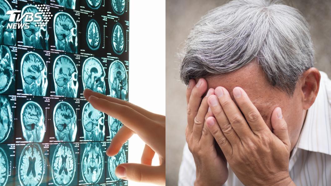 示意圖/TVBS 豪爽父突變安靜! 醫一看嚇傻:腦被「擠凹1個洞」