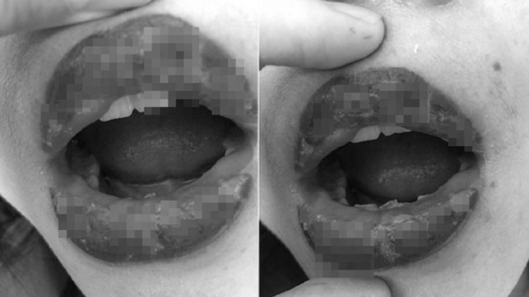 圖/翻攝微博 愛美去漂唇!輕熟女變香腸嘴 長滿水泡流膿
