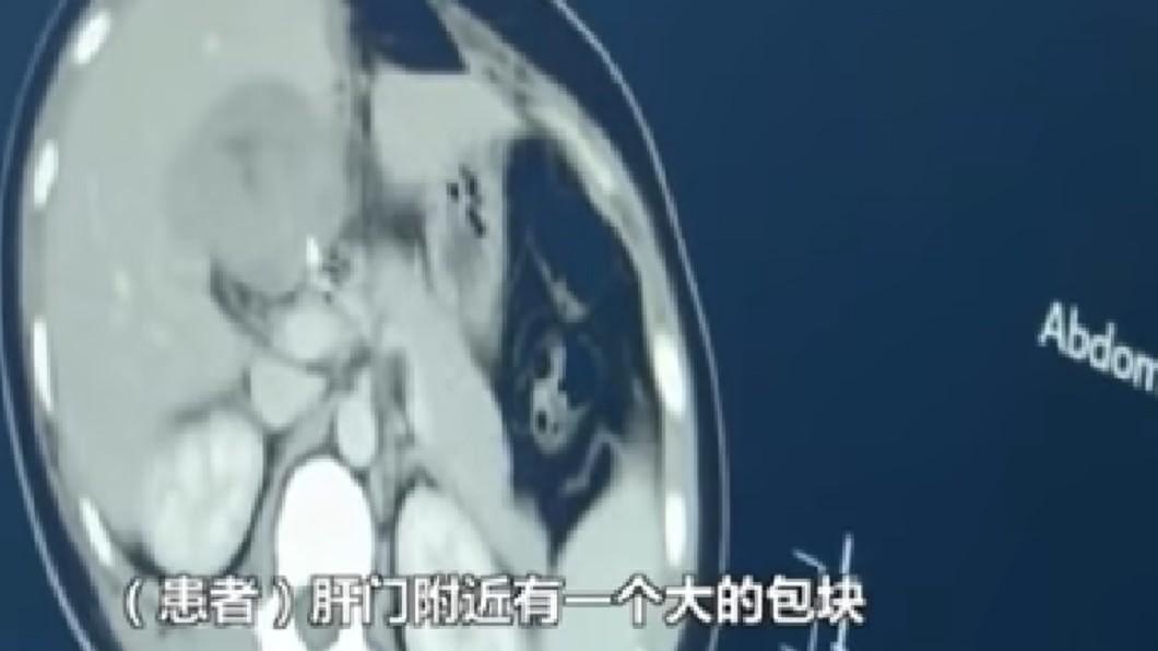 圖/翻攝《看看新聞》 她懷孕子宮空的!CT一照「肝臟受精」 長出胚胎醫嚇傻