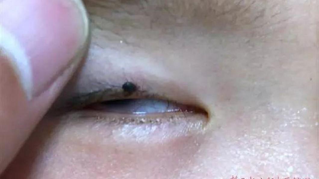 圖/翻攝楚天都市報 2歲童「眼皮多顆黑痣」隔天還變大 醫:差點斃命