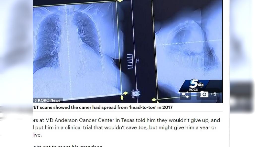 圖/翻攝自《每日郵報》 癌末被宣判剩3個月 男信偏方吃狗驅蟲藥竟痊癒