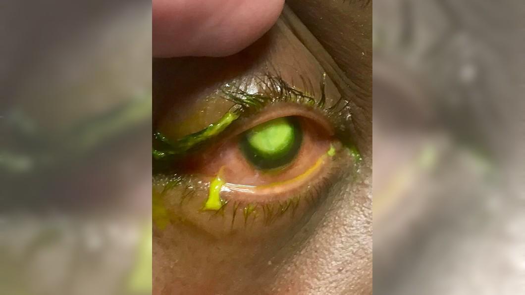 當病人眼晴受感染時,醫生會在眼球注入螢光顯影劑。圖/翻攝自Vita Eye Clinic臉書 戴隱眼睡覺!她眼角膜遭細菌吞噬 狂冒膿液恐失明