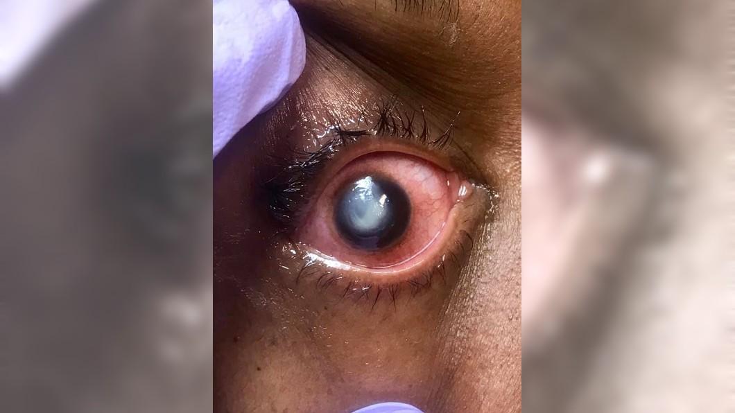 有患者戴隱眼睡覺,導致眼球發白。圖/翻攝自Vita Eye Clinic臉書