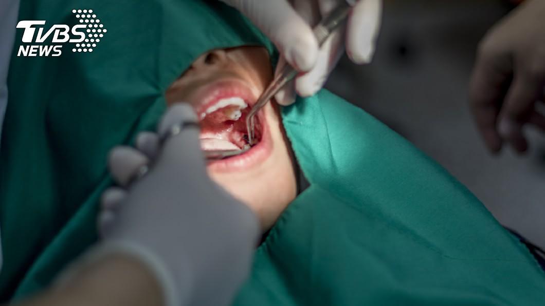 示意圖,非當事人/shutterstock達志影像 想戴牙套…妹子全麻拔4顆牙 「嘴咬管子」斷氣在手術台
