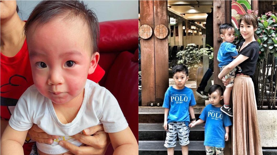 依依在臉書上分享兒子過敏的症狀,呼籲家長一定要注意孩子的飲食。圖/翻攝自臉書「雙胞胎 依依佩佩  的 依依」 親友硬餵蛋料理「兒過敏險窒息」 女星驚:差點失去他