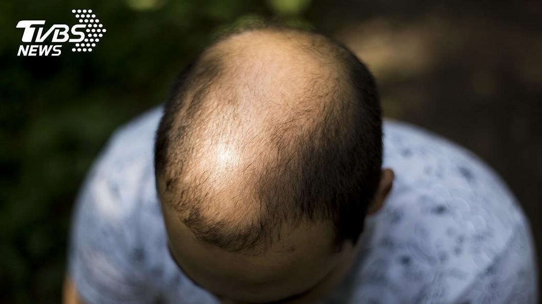 示意圖/TVBS 砸萬元買古方治禿頭 用了5個月頭髮全掉光