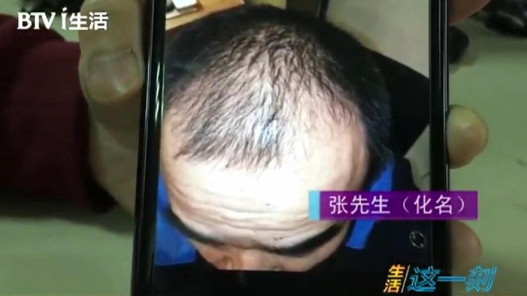 張男表示,買了生髮產品後,用了5個月,頭髮反而掉更兇。圖/翻攝自微博