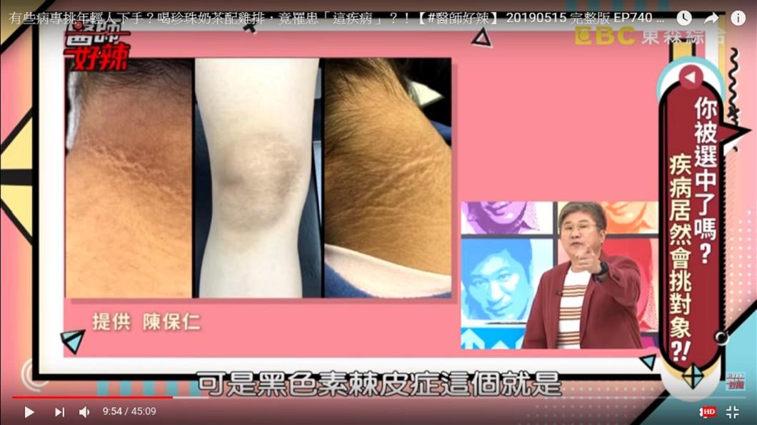 陳保仁醫師在《醫師好辣》中分享這個案例。圖/翻攝自YouTube