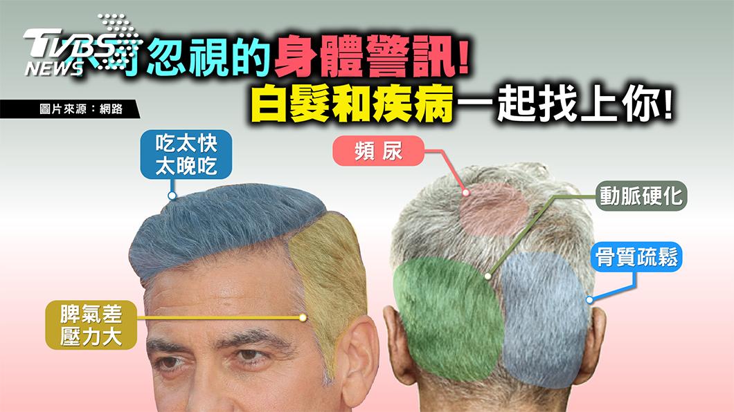 圖/TVBS提供 當白髮出現 小心是動脈硬化、骨鬆找上門!