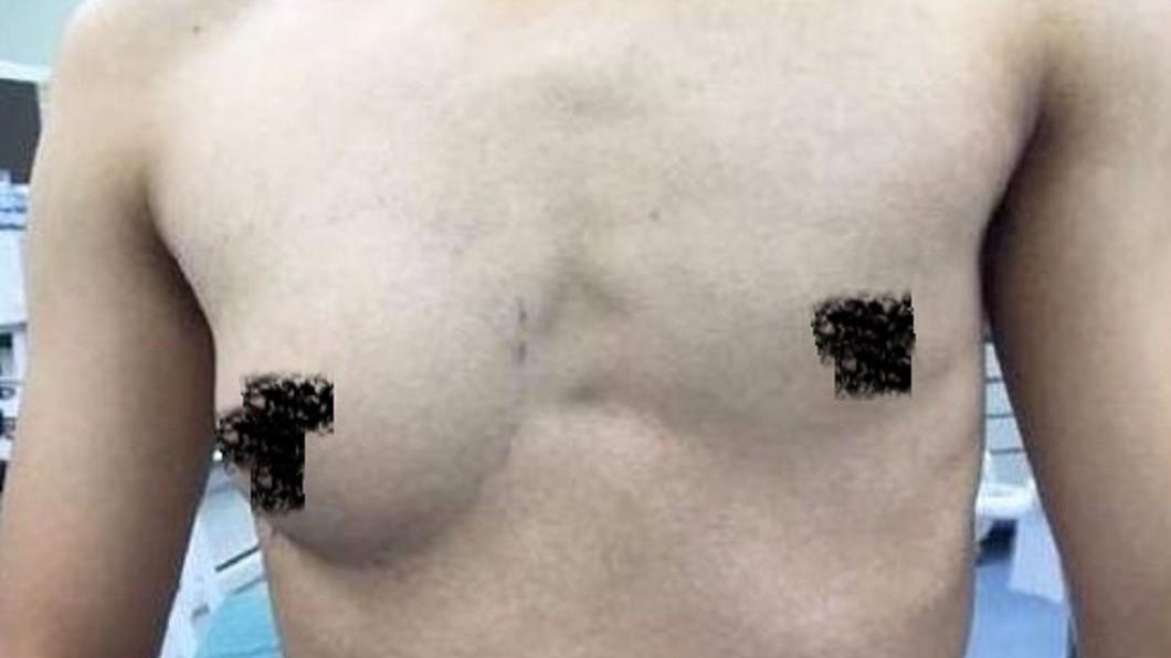 他只有「右側乳房」發育的像女性一樣。圖/翻攝自微博
