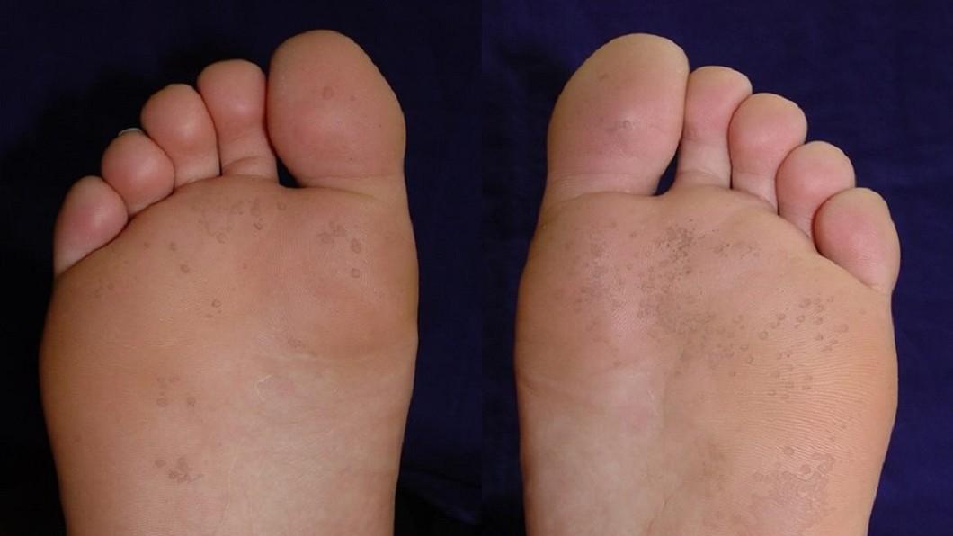 腳的的小凹洞有可能是「掌蹠蠹蝕症」。圖/翻攝自成大醫院臉書