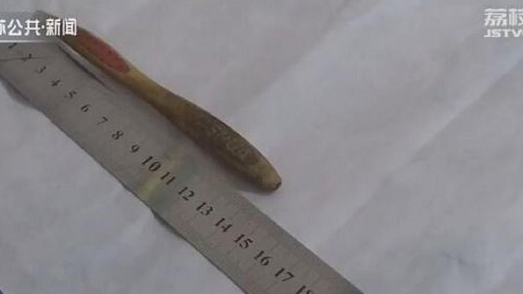 老婦因誤食牙刷柄,導致胃痛難耐。圖/翻攝自「荔枝網 」