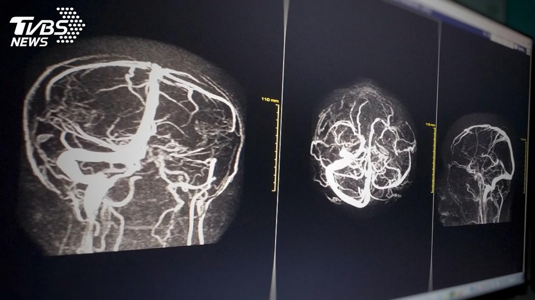 示意圖/TVBS 68歲腦動脈瘤爆裂!復健後再披白袍 一開始還得包尿布