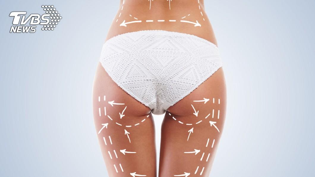 手術失敗引發蜂窩性組織炎,更導致雙腿失去知覺。示意圖/TVBS