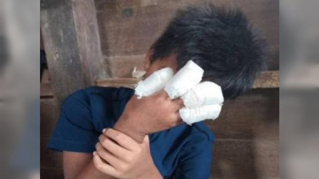 圖/翻攝自 馬來西亞中國報 鞭炮炸碎4指童淡定包紮 母拆繃帶一看...差點嚇暈