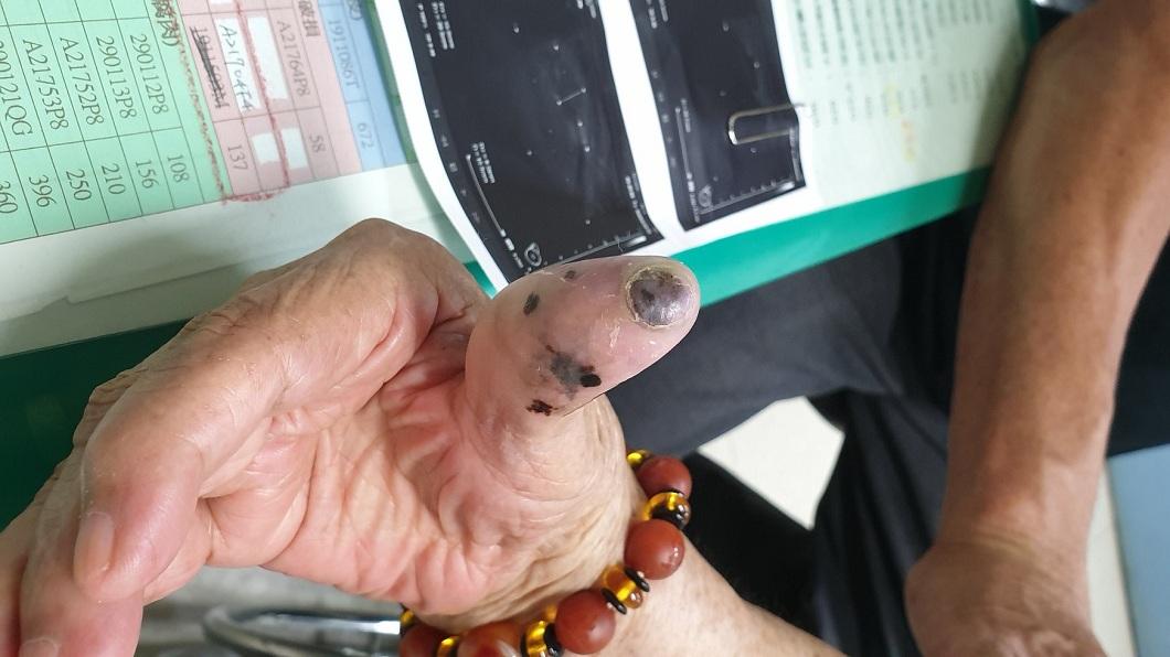 彰化一名91歲阿嬤的右手指腹和指甲,30年前分別長出了黑痣,沒想到近日引發癌變。(圖/翻攝自「彰化人彰化事」臉書粉絲團) 摸到腋下硬塊…91歲嬤驚呆 右手指30年大黑痣引病變