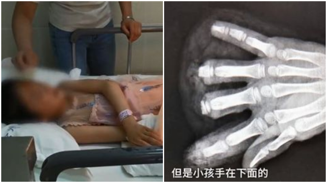 圖/翻攝梨視頻 8歲女童玩耍遭機器夾手 4根指頭全斷了