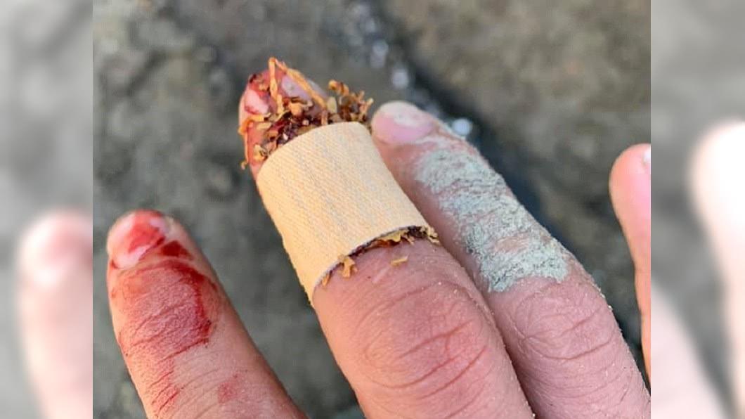 網友PO出自己受傷用菸草止血的照片,表示真的可以止血。圖/翻攝爆系知識家臉書