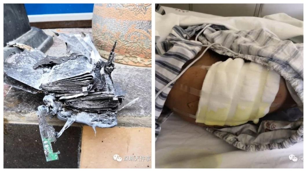 該款行動電源爆炸,導致外送員的大腿二級燒燙傷。(圖/翻攝自騰訊網)