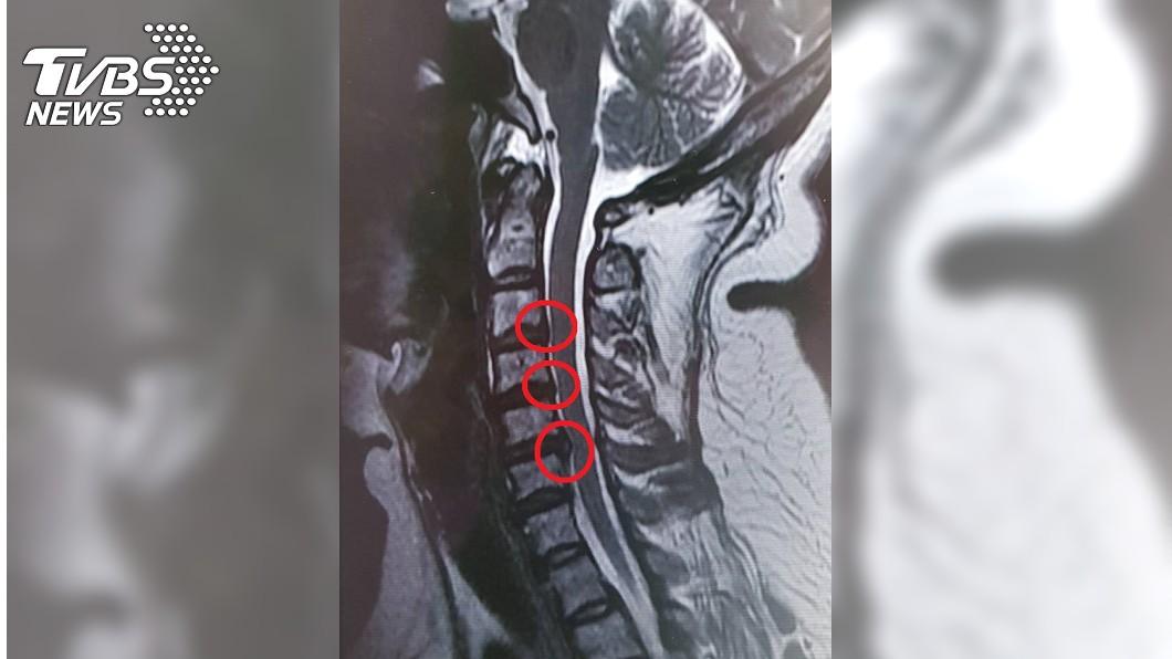 紅色圈起處為骨刺,會影響身體健康。圖/TVBS